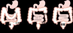 便秘の腸の形態